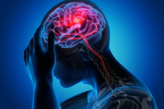 New Allergan migraine drug seems safe, effective in late-stage trial