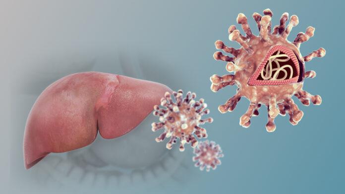 Hepatitis C Infection