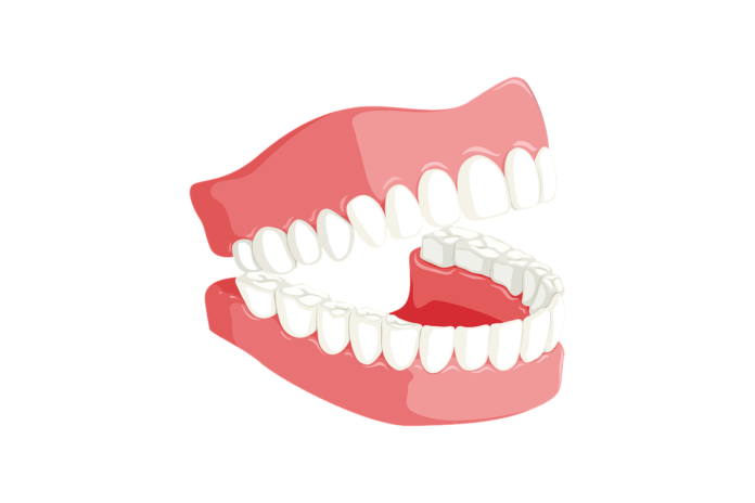 Botched Dental Surgery