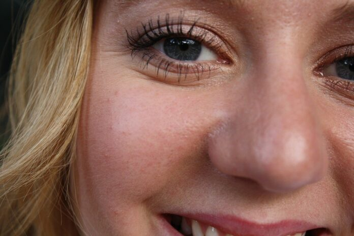get rid of the lines under eyes